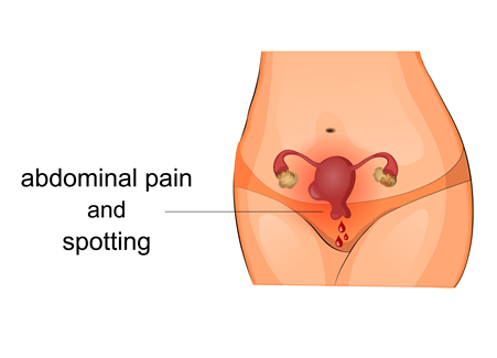 symptoms-of-fibroids