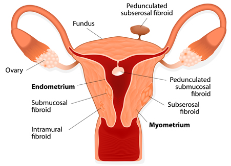 what-are-fibroids